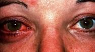 โรคตาแดง คืออะไร